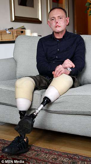 With the use of prosthetic legs, Dr Nel, now 52, has been able to learn to walk again and live independently