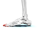 Distal phalanges of left foot02 lateral view.png