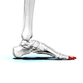 Distal phalanges of left foot03 medial view.png