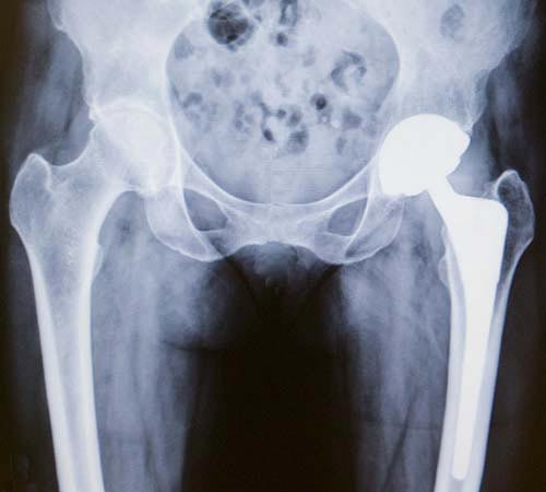 X-ray of a total hip replacement showing the ball, socket and stem implants.
